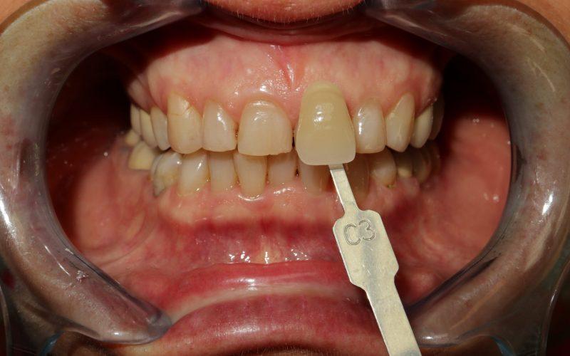 Ambulantné bielenie zubov pred zákrokom
