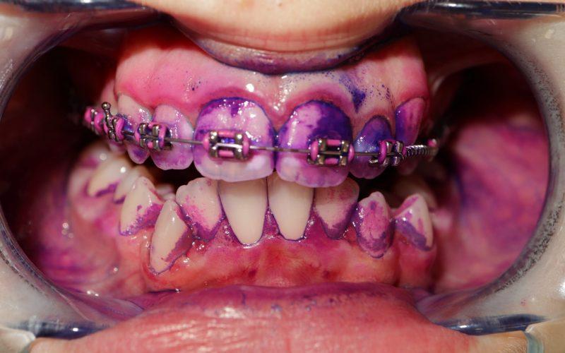 Dentálna hygiena - detský pacient pred orto liečbou