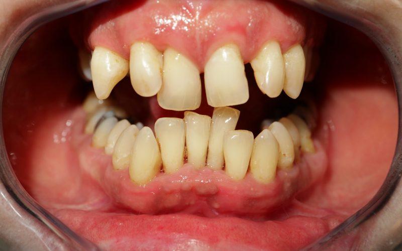 dentálna hygiena výsledok