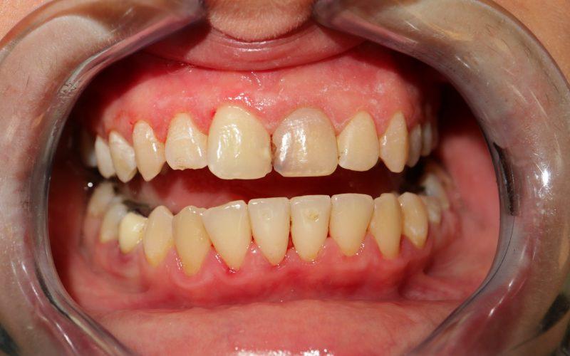 Dentálna hygiena po zákroku(1)